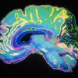 Coloured MRI Scan Of Human Brain — Stock Photo