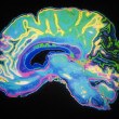 Coloured MRI Scan Of Human Brain - Stock Photo