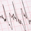 Stock Photo: Printout from cardiograph