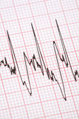 Printout from cardiograph — Stock Photo