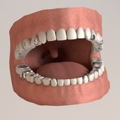 3d render of human teeth with fillings — Stok fotoğraf