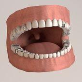 Rendu 3d de dents humaines avec garnitures — Photo