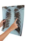 Insan bir göğüs röntgeni. — Stok fotoğraf