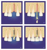 Protesi dentale — Stock Photo