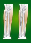 Radius fracture — Stock Vector