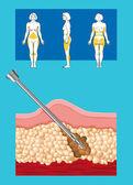 Liposuction — Stock Photo