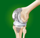 Prosthesis of the knee — Stock Photo