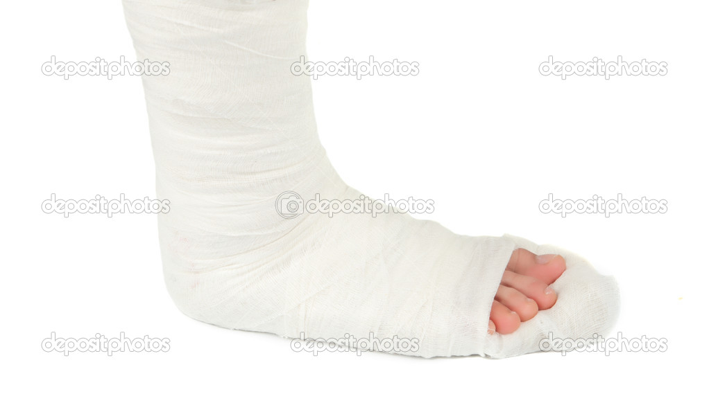 Bein gipsverband