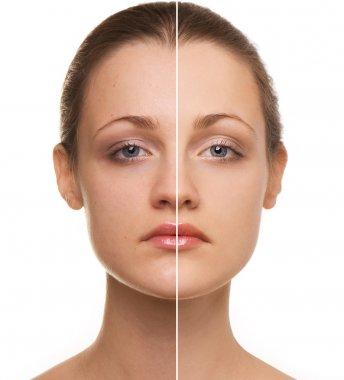 Woman's face correction
