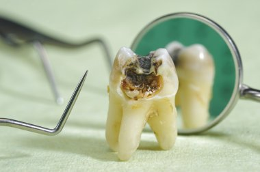 Caries on tooth