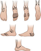 Fotografie Closeup man feet with massaging lines (vector illustration)