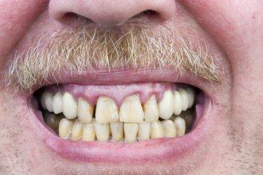 Yellow teeth are sick studio shot