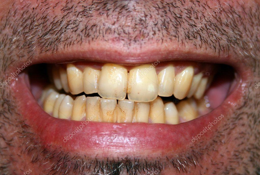 dating yellow teeth