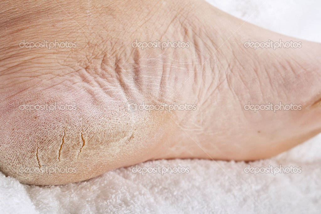 Feet that need a pedicure