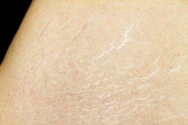 Waist Skin Stretchmarks