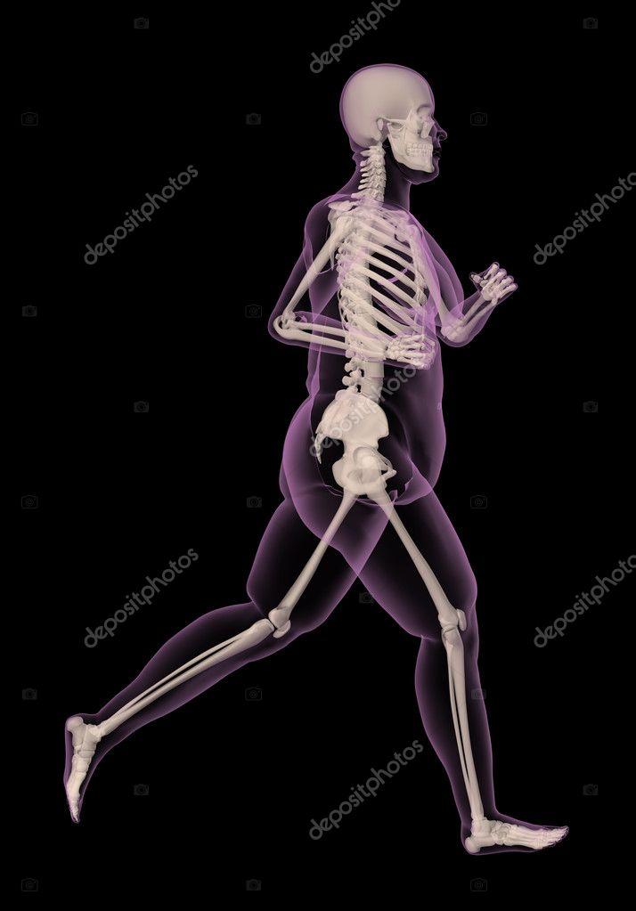 medizinische Skelett einer übergewichtigen Frau ausgeführt ...
