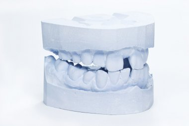 A set of adult dental impressions