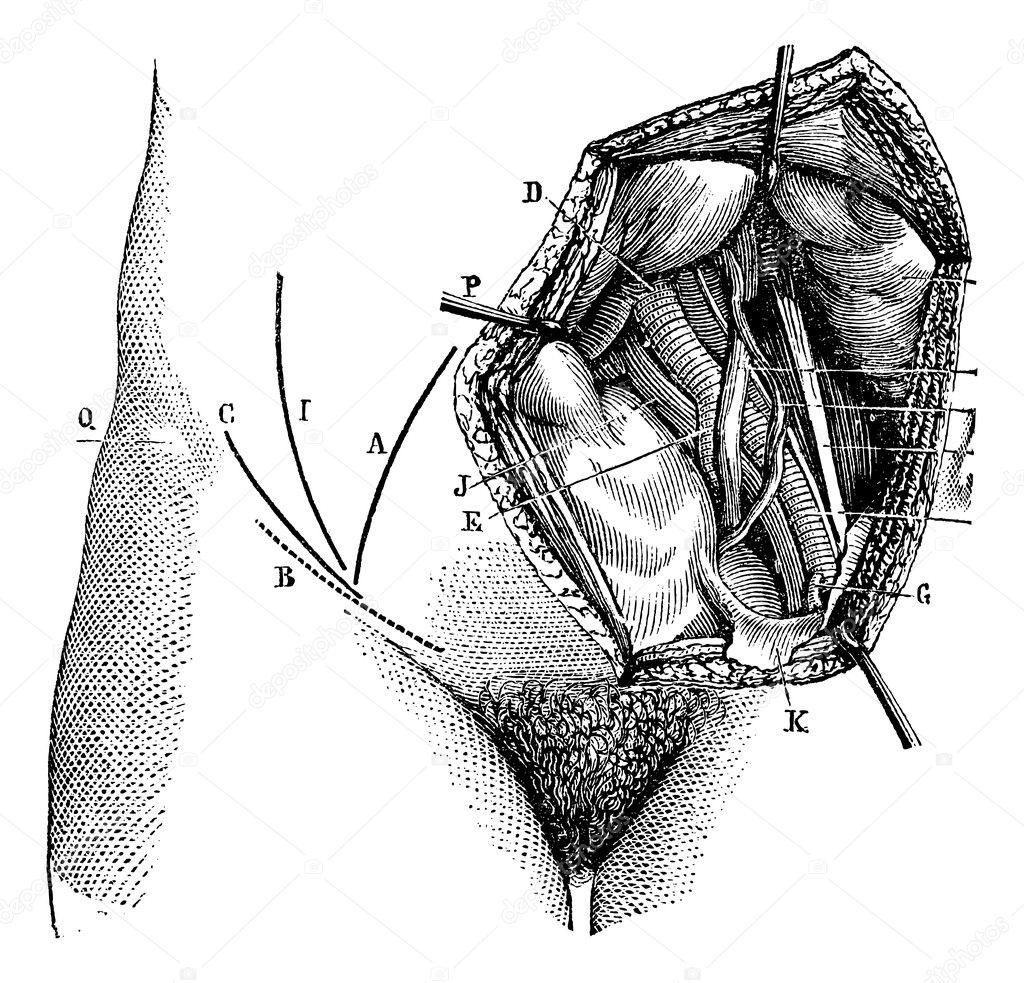 Fig. 618. arteria ilíaca y sus ramas, vintage grabado — Archivo ...