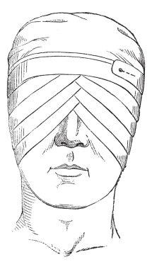 Fig. 176. Spectacles or eye bandage crosses two globes, vintage