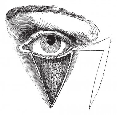 Fig. 179. Blepharoplasty by the method of Dieffembach, vintage e