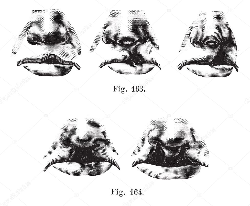 Fig. 163. Degrees of cleft lip simple, Fig. 164. Cleft lip doub ...