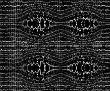 Brain waves on encephalogramme EEG