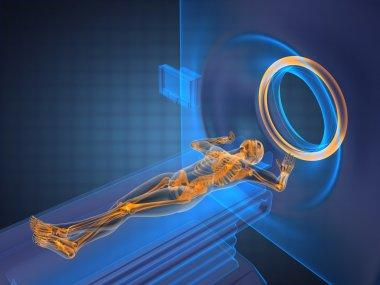 MRI examination