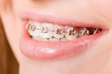 Young woman with brackets on teeth