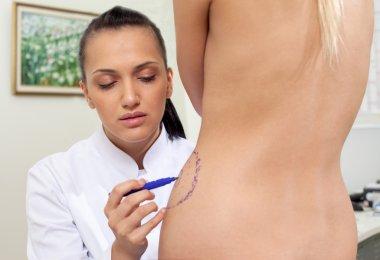 Doctor plastic correction lines body