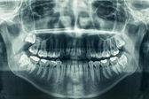 zubní panoramatický rentgen