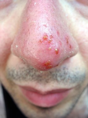 Nose Cold Sore