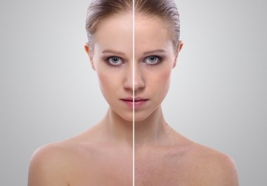 Effect of healing of skin, beauty young woman before and after t