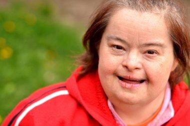 Down syndrome woman