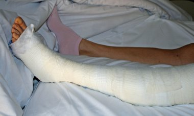Foot and leg bandaged after surgery