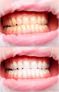 Female teeth