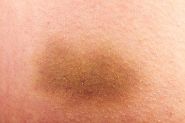 Bruise closeup