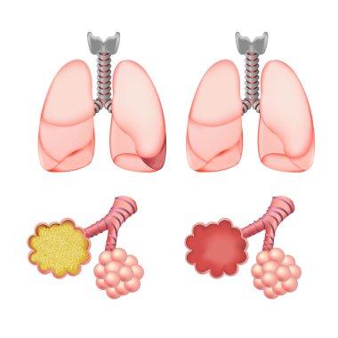 Alveoli In Lungs Set