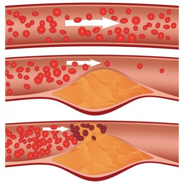 Top artery is healthy. Middle & bottom arteries show plaque formation, rupturing, clotting & blood flow occlusion. stock vector