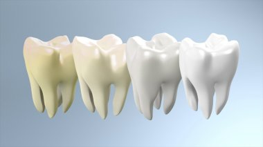 Tooth step to be white process