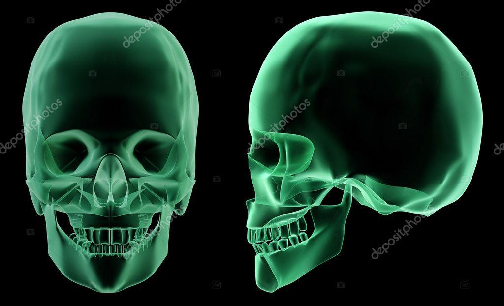 röntgen skelett struktur av det mänskliga huvudet — Stockfotografi ...