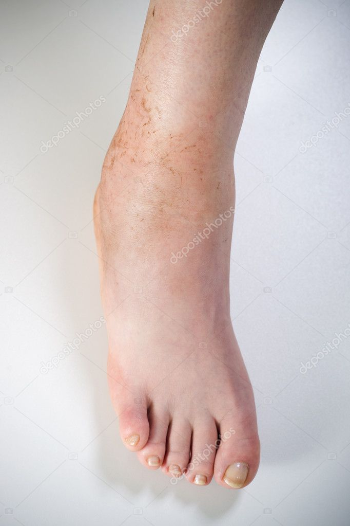 kenőcs krém ízületek izomfájdalmainak kezelésére ágyék fájdalom a csípőízület protézise után