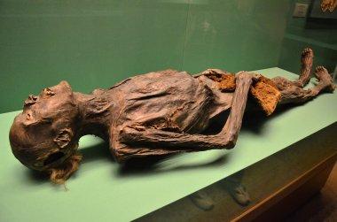 The Human Mummy