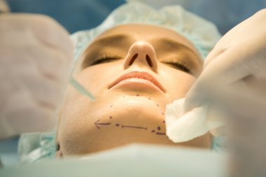 Patients chin with marks before operation