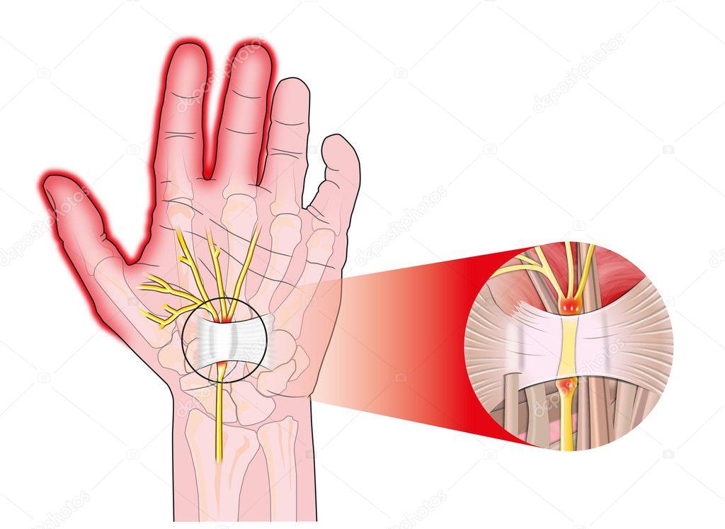 ligamento carpiano transversal — Vector de stock © alexonline #10651188