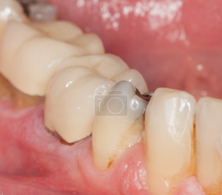 Macro image of filled teeth