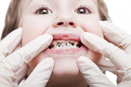 Caries teeth decay