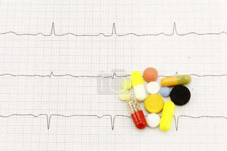 Electrocardiogram and medication