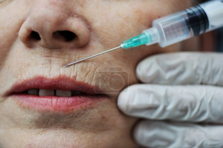 Needle injection on mature woman face