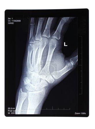 Xray of broken hand