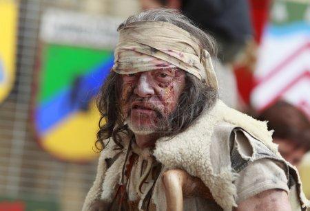 Portrait of a leprous man